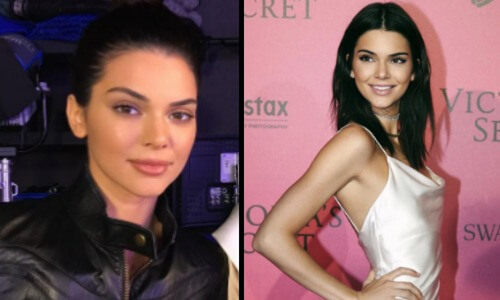 face photos plastic surgery of kendall jenner