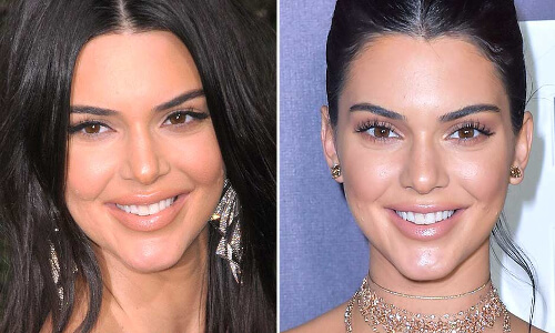 kendall jenner plastic surgery pictures
