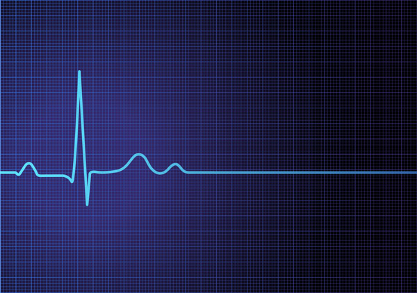 Graphic showing heart rate chart