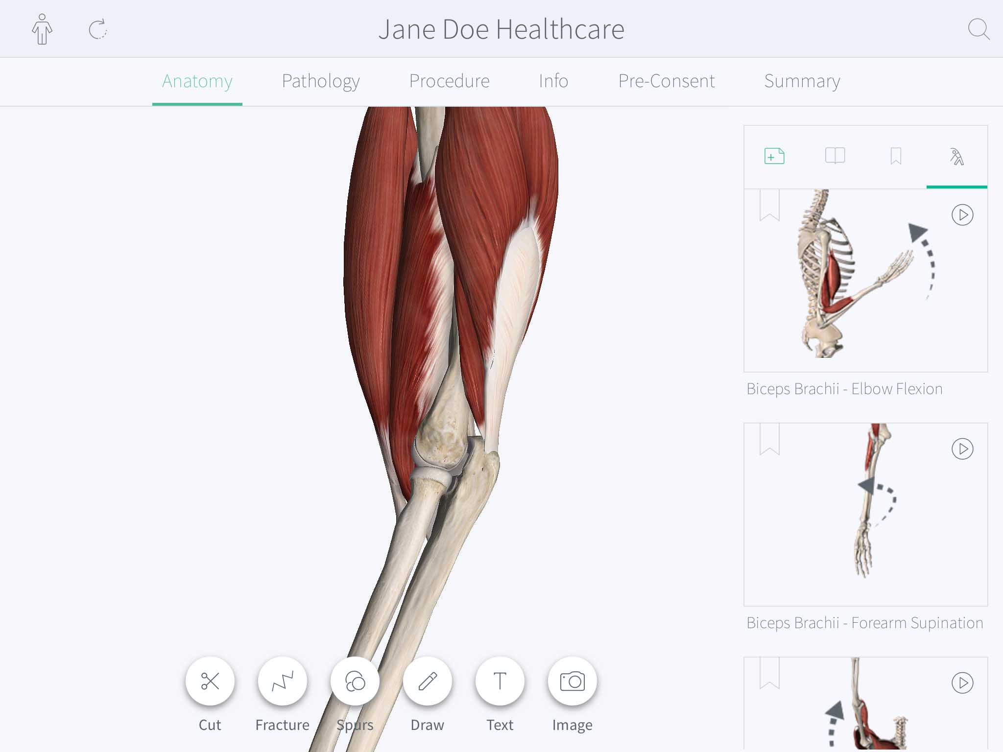 Using Muscle Motion – 3D4Medical