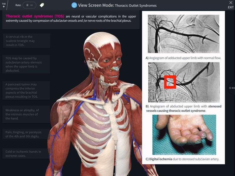Abrahams Clinical Human Anatomy 3d4medical
