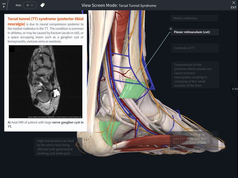 Abrahams' Clinical Human Anatomy – Complete Anatomy