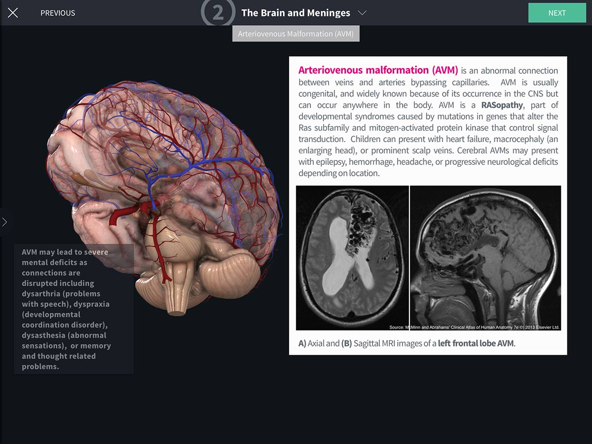 Abrahams Clinical Human Anatomy 3d4medical