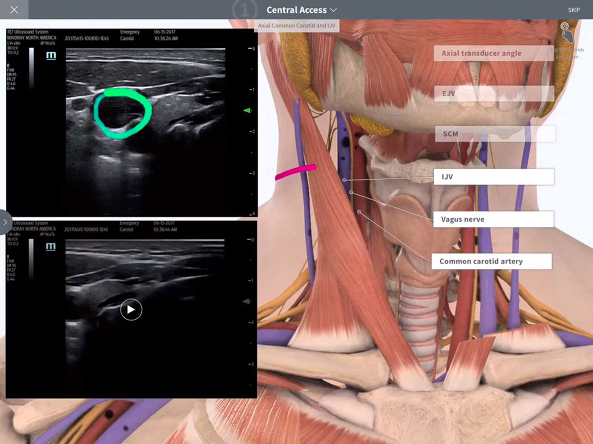 Point of Care Ultrasound – 3D4Medical