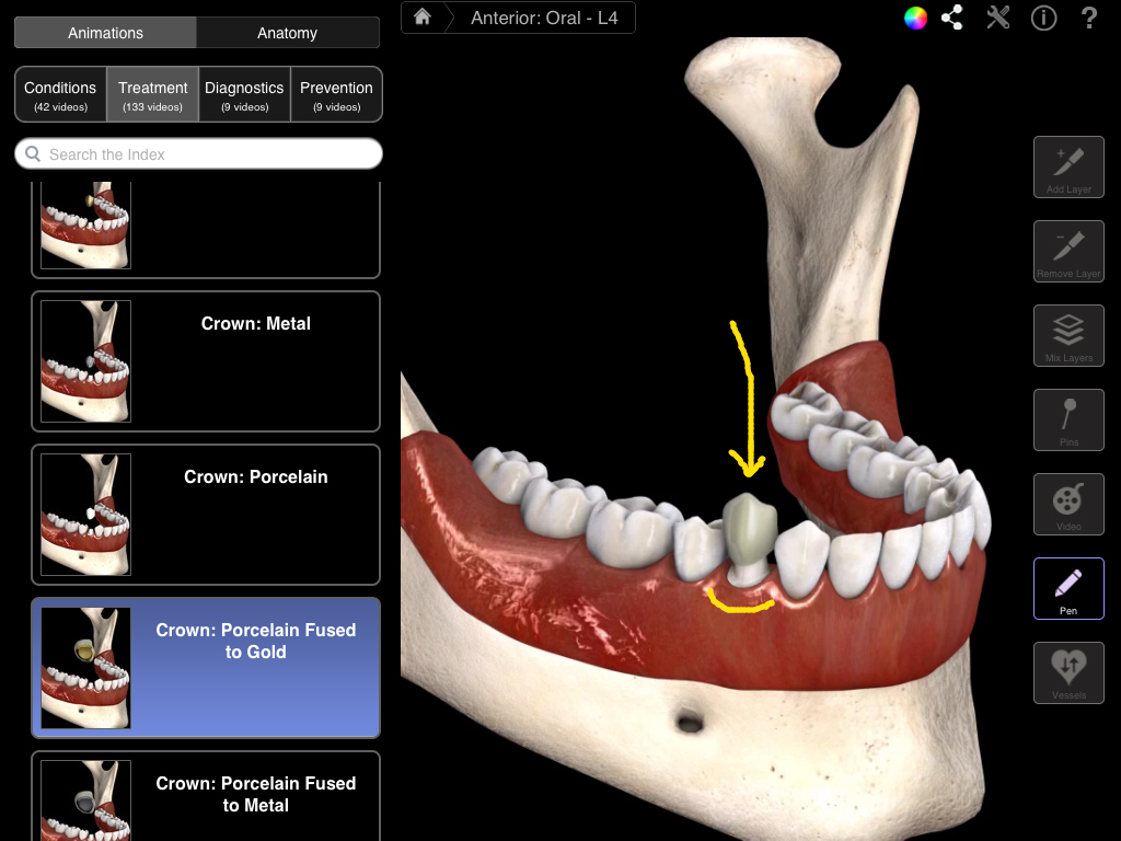 Dental Patient Education 3d4medical