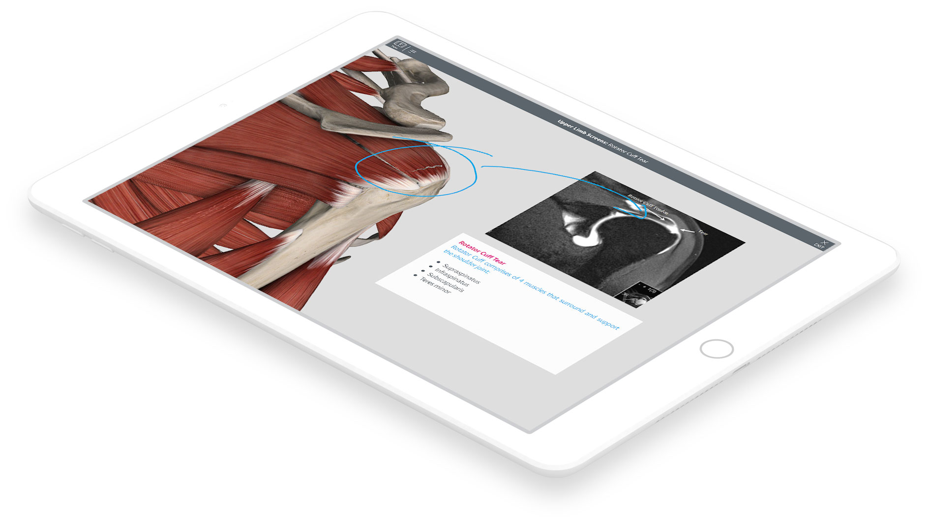 Complete Anatomy: Free Trial – 3D4Medical