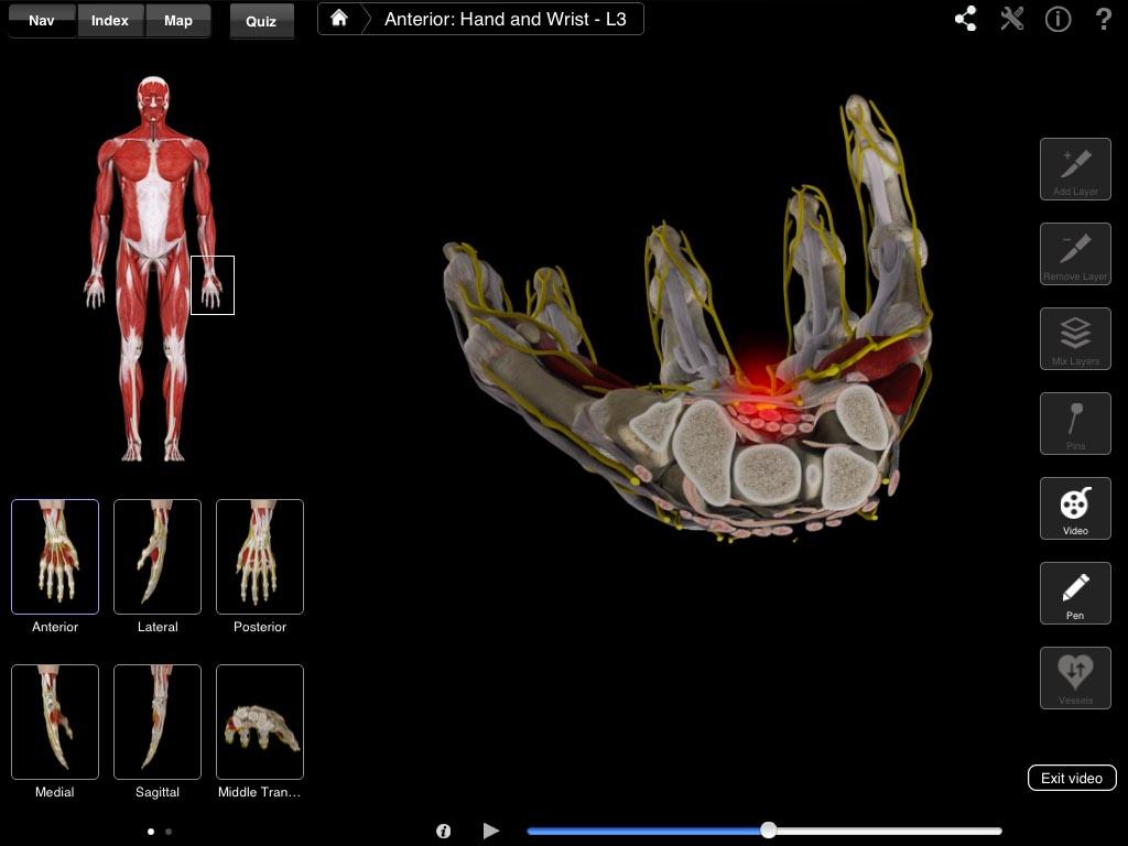 Hand & Wrist Pro – 3D4Medical