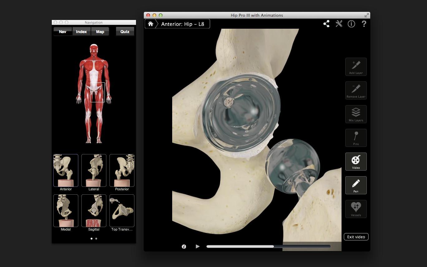 Hip Pro – 3D4Medical