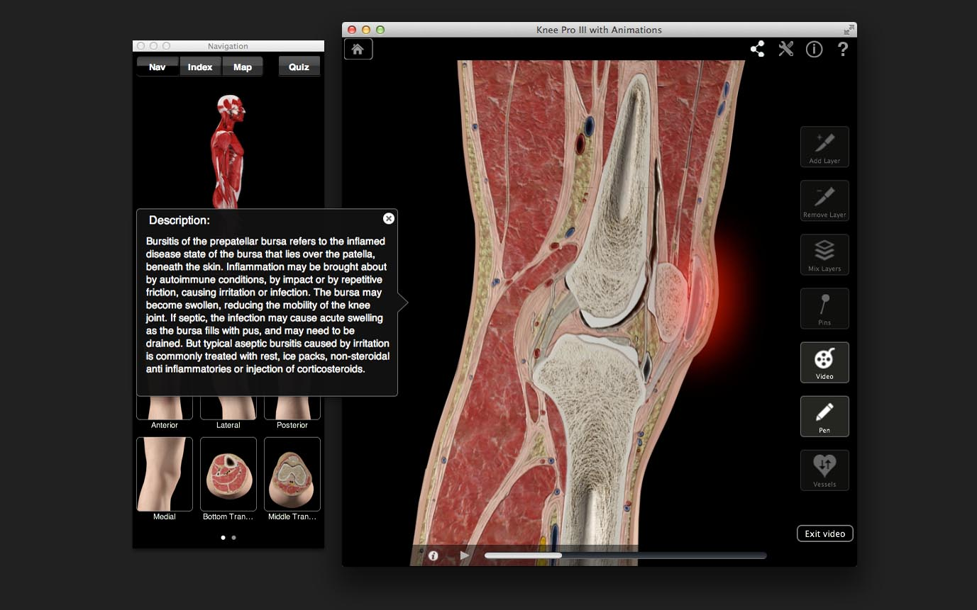 Knee Pro – 3D4Medical