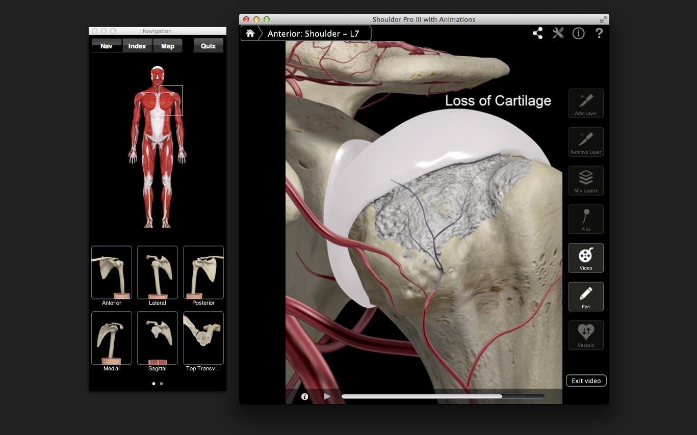 Shoulder Pro – 3D4Medical