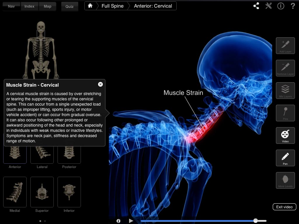 Spine Pro – 3D4Medical