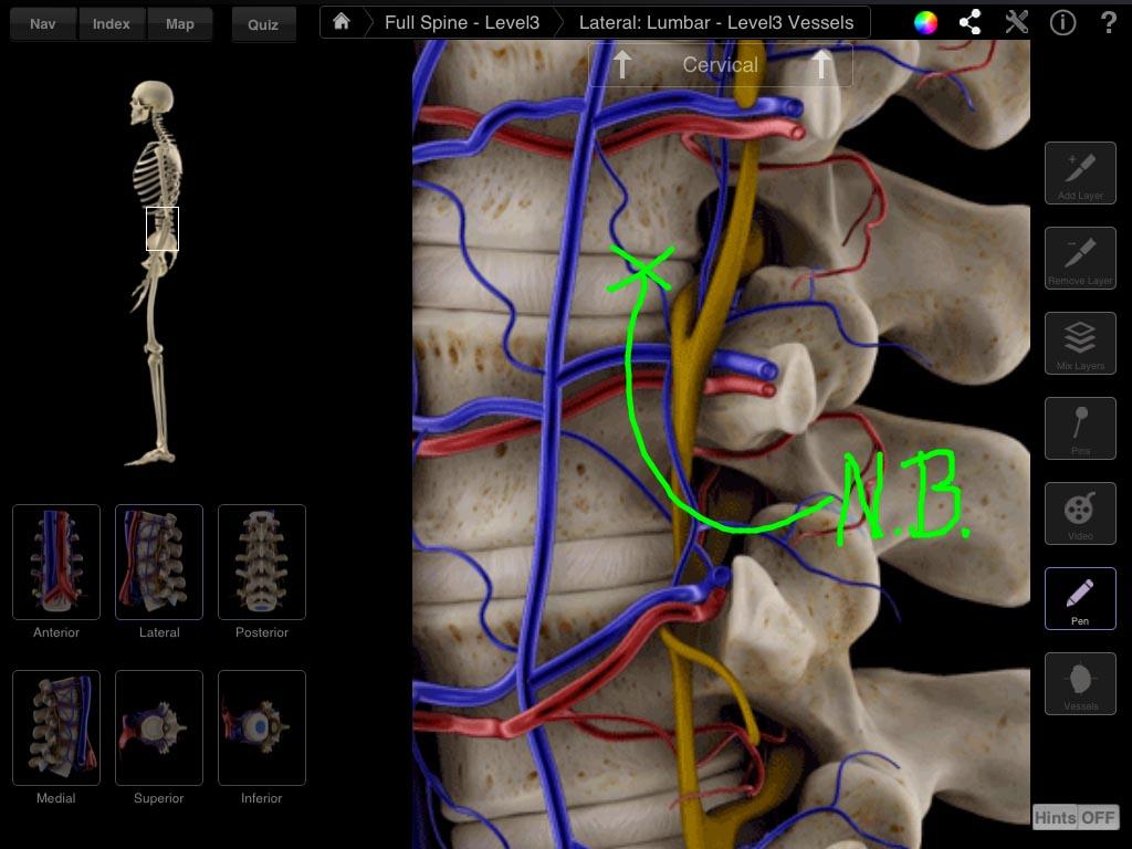 Spine Pro 3d4medical
