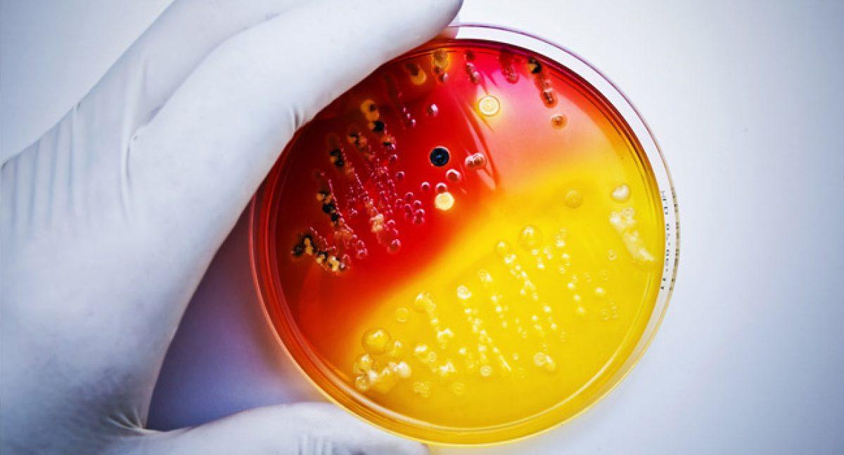 Mbns18 Aegis Microban Antimicrobial bacteria petri color mtime20190225200928