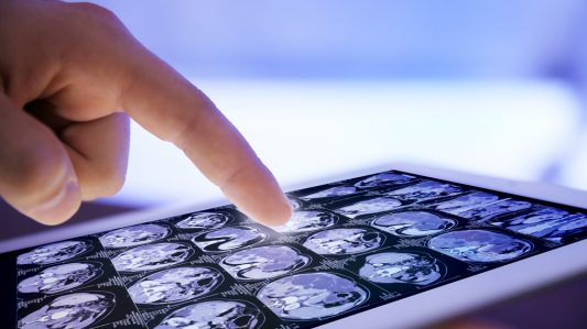 Are Touchscreen Devices Increasing Infection Risks?