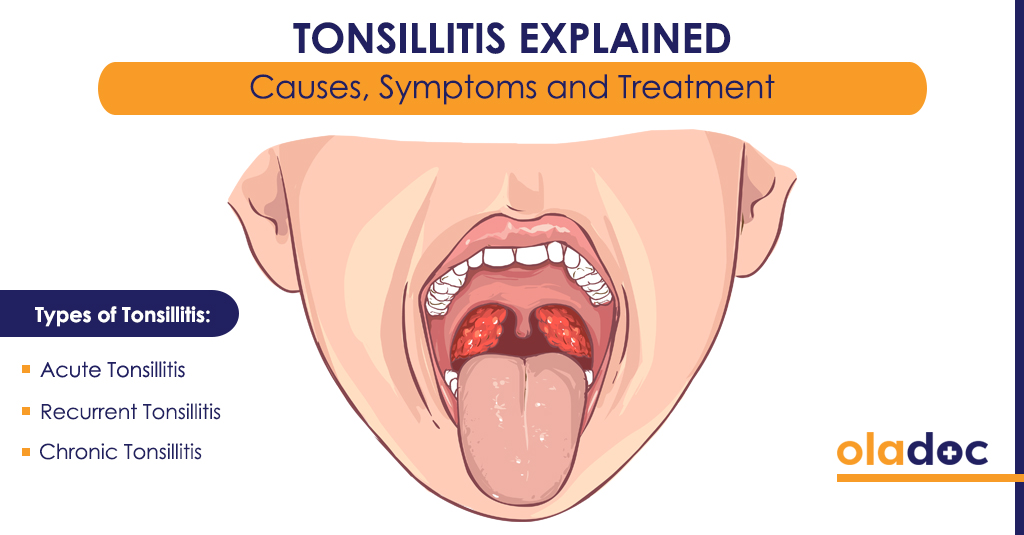 Tonsillitis Explained: Causes, Symptoms and Treatment