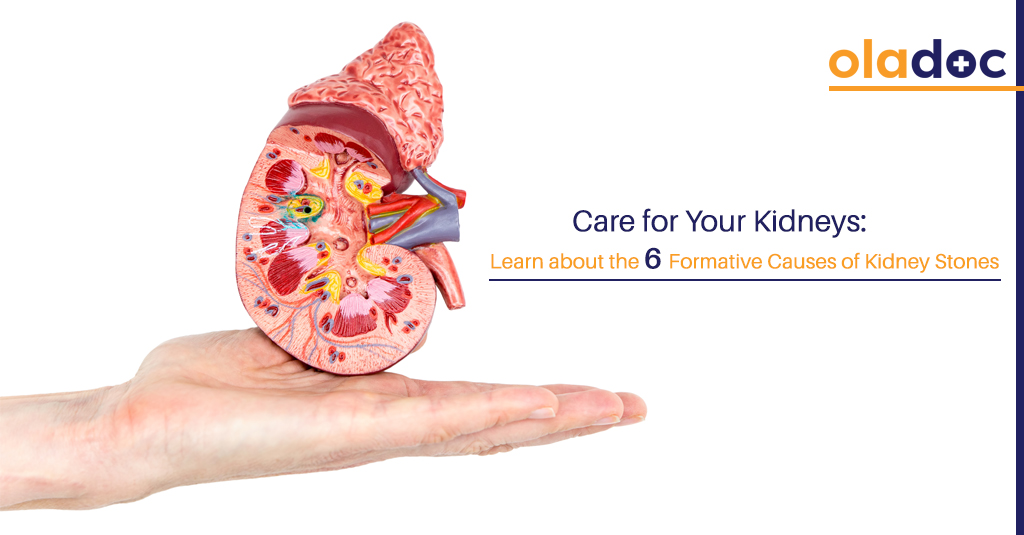 Care for Your Kidneys: Learn about the 6 Formative Causes of Kidney Stones