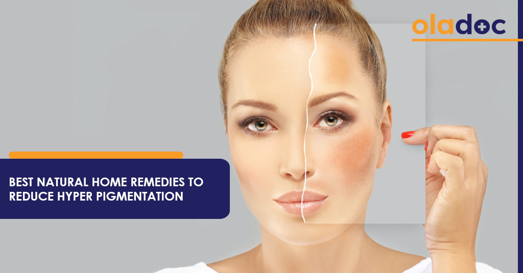 BEST HOME REMEDIES TO REDUCE HYPERPIGMENTATION