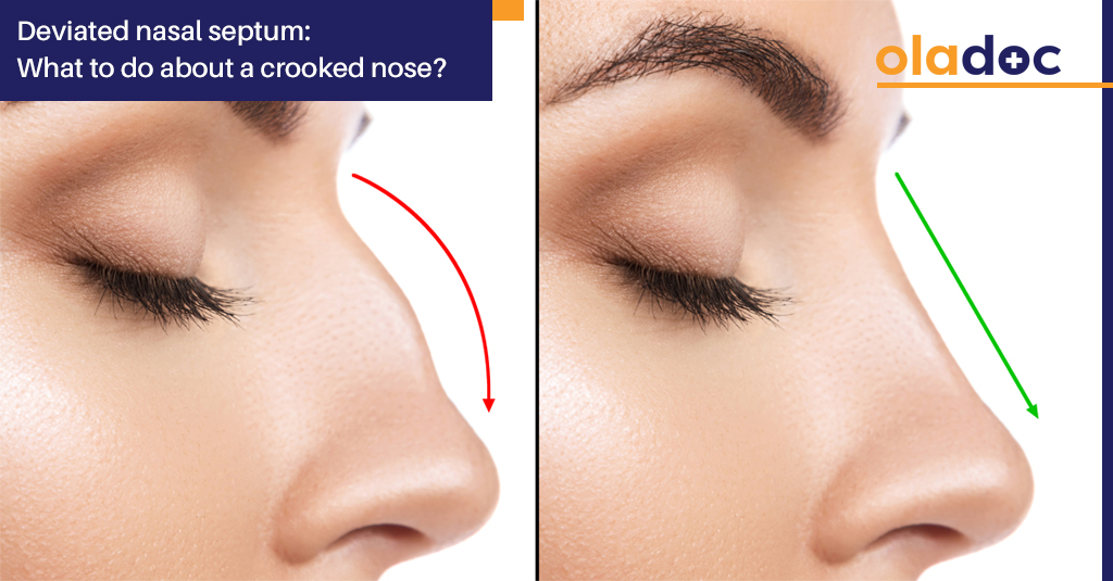 Deviated Nasal Septum What To Do About A Crooked Nose Ent Ear