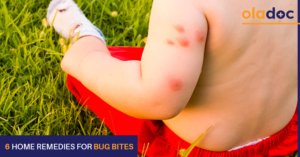 remedies for bug bites