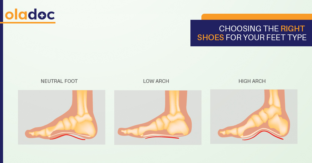 Foot Love: Choosing The Right Shoes For Your Foot Type