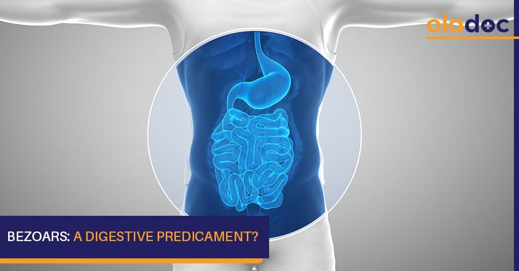 Bezoars_A_Digestive_predicament