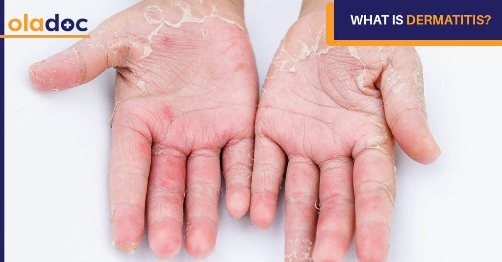 Dermatitis_