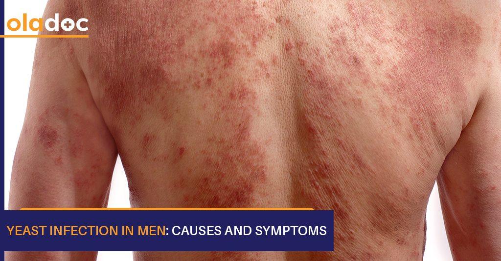 Yeast_infection_in_Men