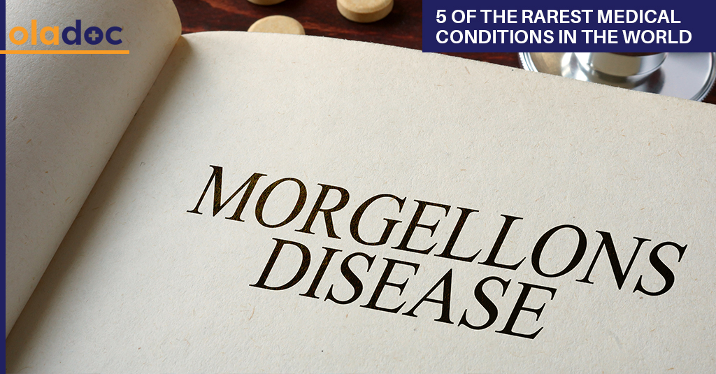Rarest_Medical_Conditions_In_The_World
