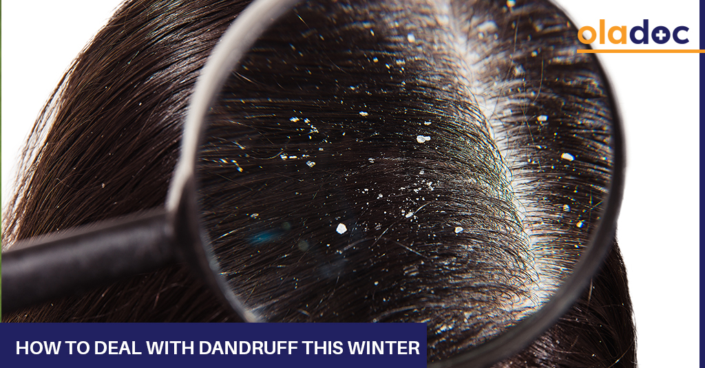 How_To_Deal_With_Dandruff_This_Winter