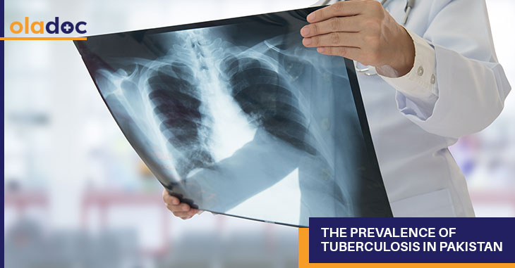 The Prevalence Of Tuberculosis In Pakistan