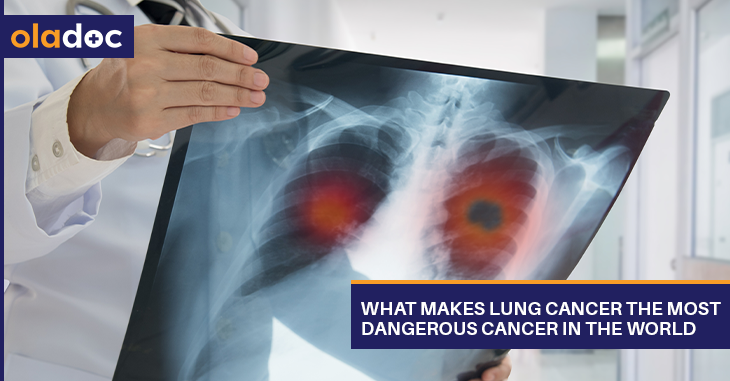 What Makes Lung Cancer the Most Dangerous Cancer in the World?