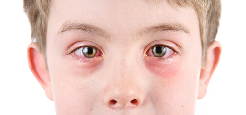 Pink Eye Treatment Online treatment