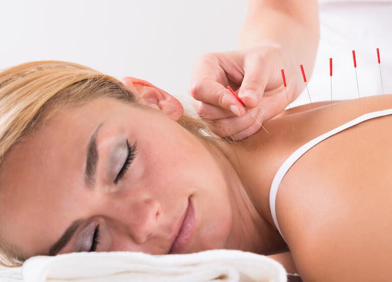Hasil gambar untuk About Acupuncture