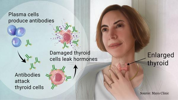 How to Treat Hypothyroidism: Treatment, Prescriptions and