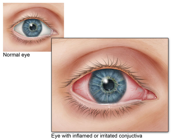Pink-Eye-Signs--Remedies--and-Treatments