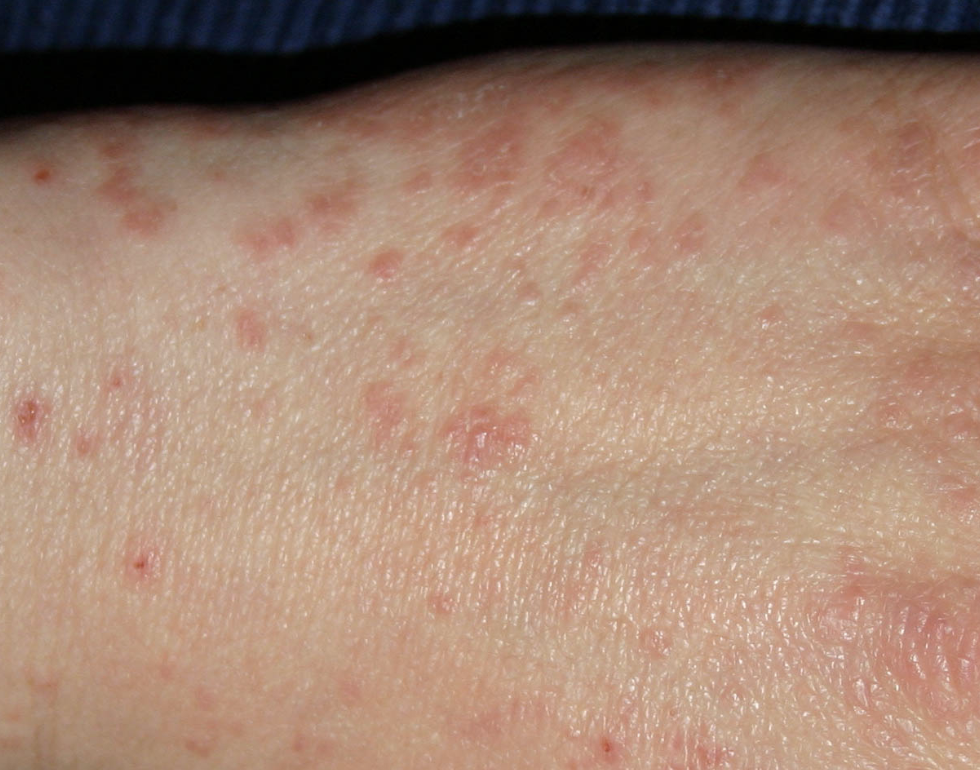 scabies-on-skin