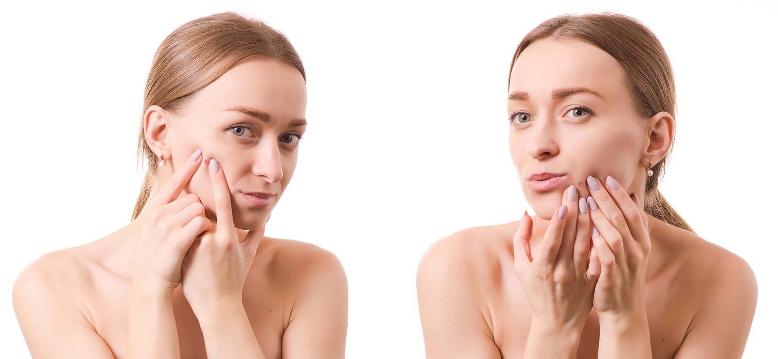 Cold Sore or Pimple? How to Spot the Difference | PlushCare