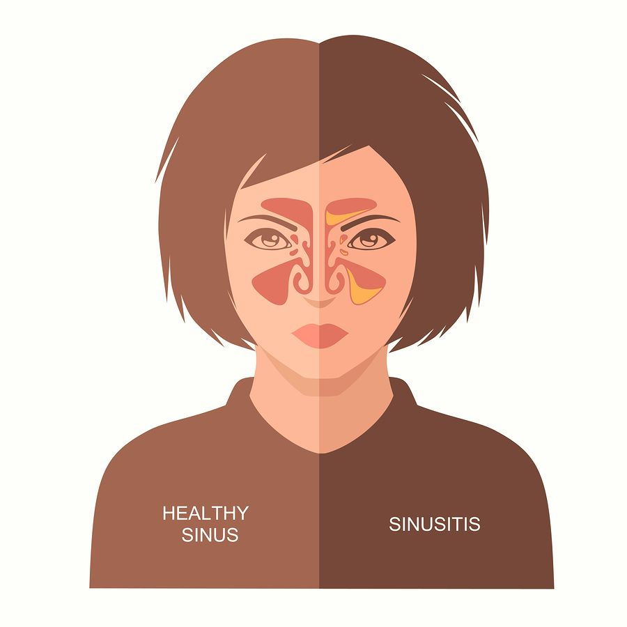 congested sinuses vs clear sinuses