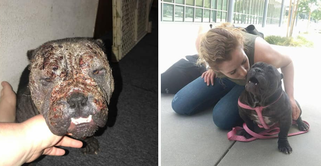 Severely Neglected Girl Gets a Chance at Forever