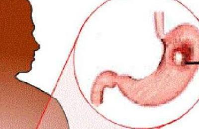 Consiste en crear una fórmula naturista y totalmente necesaria para el tratamiento del cáncer de estómago,recreando las células dañinas y reconstruyendo...