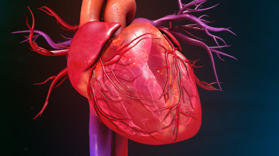 A certain type of heart defect linked to poorly developed blood vessels around the heart