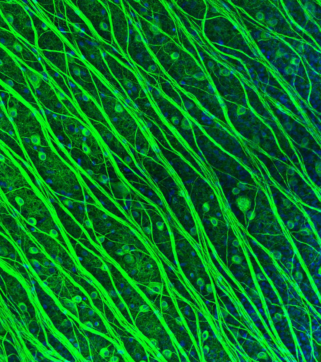 "Second place winner of the 2016 Art of Neuroscience competition. ""Retinal ganglion cells in the primate retina"" submitted by Lauren Grosberg, postdoctoral research fellow, neurosurgery."