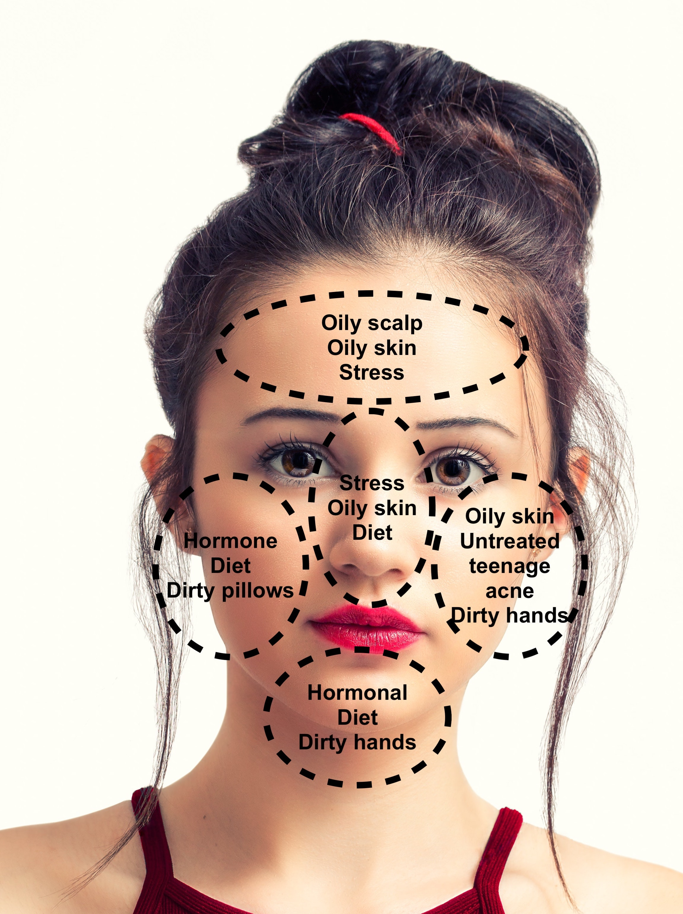 Face Mapping: The Location of Your Break Outs Can Reveal the ... on zit mapping, anxiety mapping, skin mapping, atrial fibrillation mapping, botox mapping, anthrax mapping,