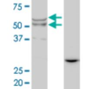 Western-Blot-Lipase-A-Antibody-1F9-H00003988-M01-Analysis-of-LIPA-expression-in-transfected-293T-cell-line-by-LIPA-monoclonal-antibody-M01-clone-1F9-Lane-1-LIPA-transfected-lysate-45-KDa-