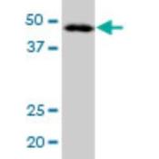 Western-Blot-LANCL2-Antibody-H00055915-B01-LANCL2-MaxPab-polyclonal-antibody-Western-Blot-analysis-of-LANCL2-expression-in-A-431-