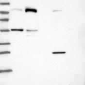 Western-Blot-AXUD1-Antibody-NBP1-91692-Lane-1-Marker-kDa-250-130-95-72-55-36-28-17-10-Lane-2-RT-4-Lane-3-U-251-MG-Lane-4-Human-Plasma-Lane-5-Liver-Lane-6-Tonsil