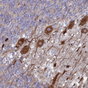 Immunohistochemistry-Paraffin-AXUD1-Antibody-NBP1-91692-Staining-of-human-cerebellum-shows-strong-cytoplasmic-positivity-in-Purkinje-cells-