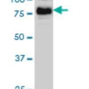 Western-Blot-B-Raf-Antibody-3C6-H00000673-M01A-BRAF-monoclonal-antibody-M01-clone-3C6-Western-Blot-analysis-of-BRAF-expression-in-Hela-NE-Cat-L013V3-