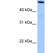 Western-Blot-LAS2-Antibody-NBP1-79525-Hela-cell-lysate-concentration-0-2-1-ug-ml-