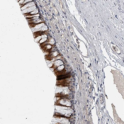 Immunohistochemistry-Paraffin-LASS3-Antibody-NBP1-84535-Staining-of-human-bronchus-shows-strong-cytoplasmic-positivity-in-respiratory-epithelial-cells-